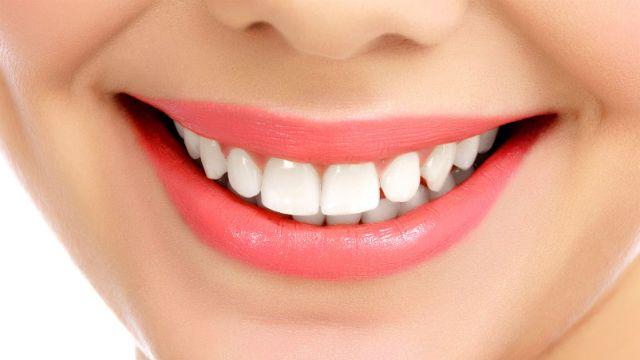 Come sbiancare i denti naturalmente a casa